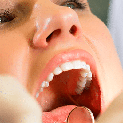 mouth-2