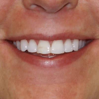 smile-4