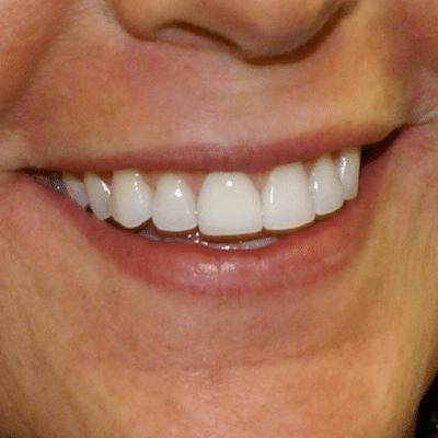 smile-6