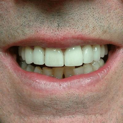 smile-8